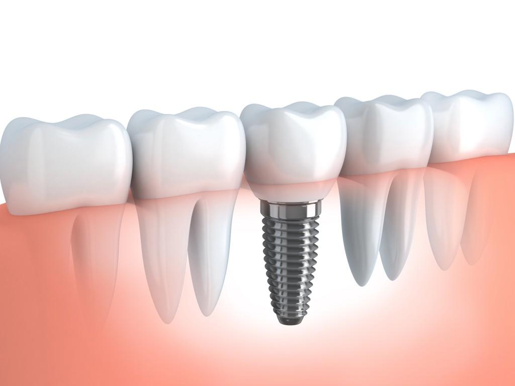 Dentista en Chipiona - Implantologia Oral